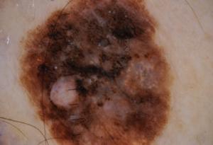 Nevo da aspetto irregolare per colore e dimesioni: cheratosi seborroica benigna, Dermatologo Crupi Agostino Novara