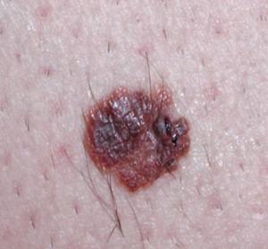 Lesione pigmantata atipica per asimmetria, bordi, colore e dimensione: nevo melanocitario benigno traumatizzato. Dermatologo Novara Crupi Agostino