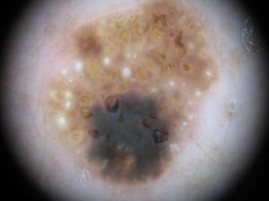 Lesione pigmantata atipica per asimmetria, bordi, colore e dimensione: cheratosi seborroica benigna Dermatologo Novara Crupi Agostino