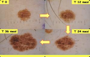 Evoluzione Neo non lineare, regola dell'ABCDE, dermatologo Novara, dottor Crupi Agostino