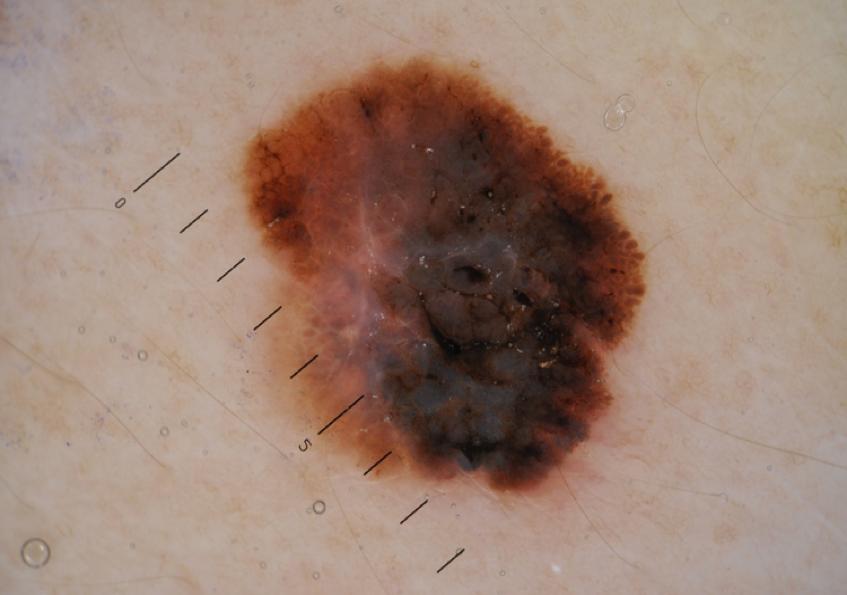 Melanoma Neo colore non omogeneo, dermatologo Novara, dottor Crupi Agostino