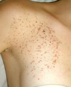 Dermatologo, Dermatologia, Novara Agostino Crupi